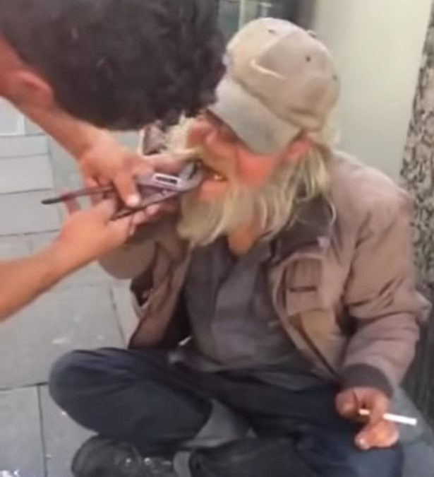 Homeless man gets rotting tooth pulled out by bin man with pliers