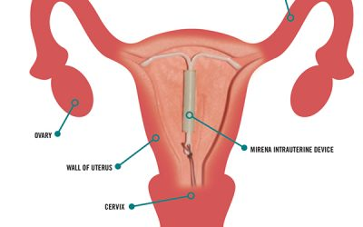 Top 8 Things Every Woman Should Know About IUDs