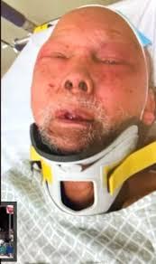 Filipino, 83, brutally beaten, robbed in his Philadelphia home